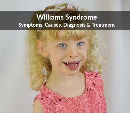 Williams Syndrome: Symptoms, Causes, Diagnosis & Treatment