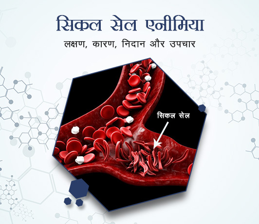 Sickle-cell Anaemia in Hindi