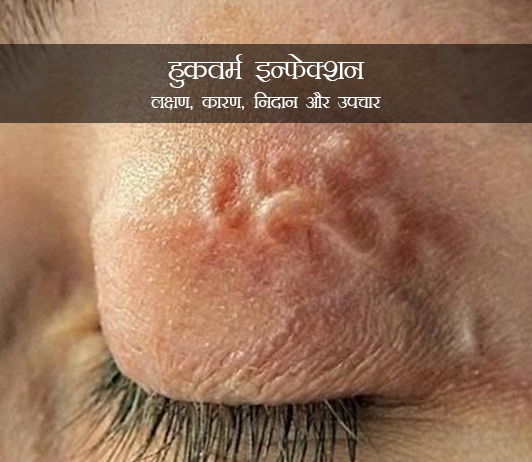 Hookworm Infection in Hindi