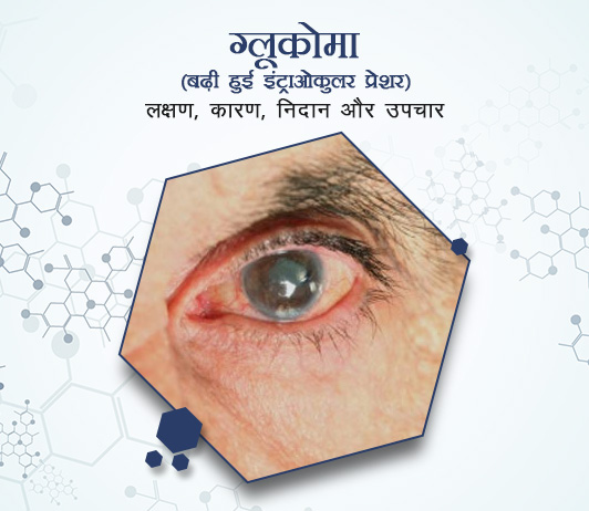Glaucoma in Hindi