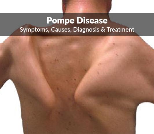 Pompe Diseases: Symptoms, Causes, Diagnosis & Treatment