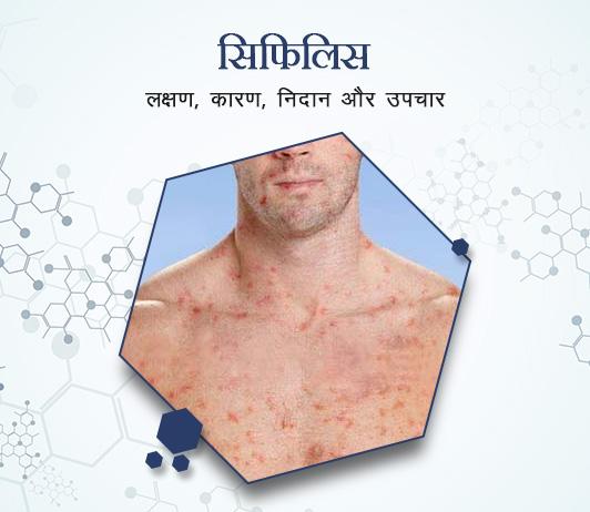 Syphilis in Hindi