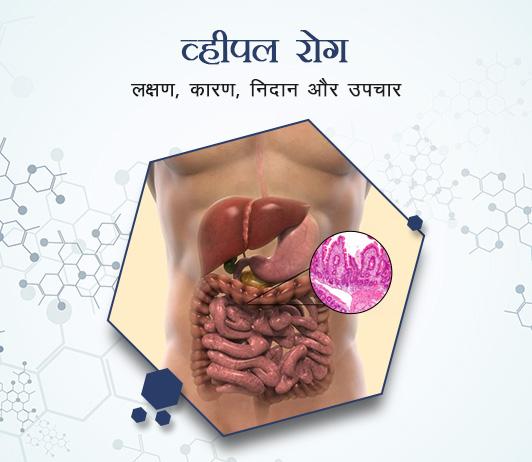 Whipple's Disease in Hindi