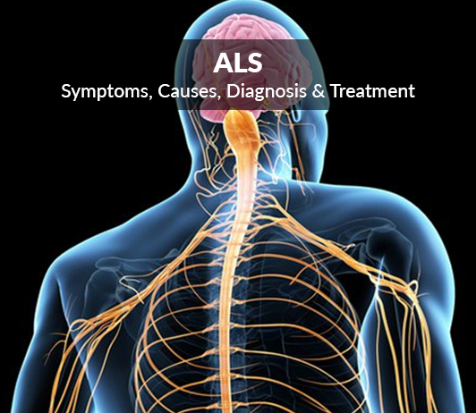Lou Gehrig's Disease (Amyotrophic Lateral Sclerosis, ALS): Symptoms, Causes, Diagnosis & Treatment