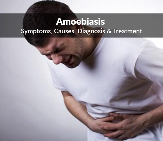 Amoebic Dysentery (Amoebiasis): Symptoms, Causes, Diagnosis & Treatment