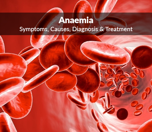 Loss Of Blood (Anaemia): Symptoms, Causes, Diagnosis & Treatment