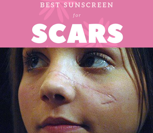 Best Sunscreens For People With Scars