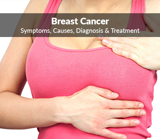 Breast Cancer: Symptoms, Causes, Diagnosis & Treatment
