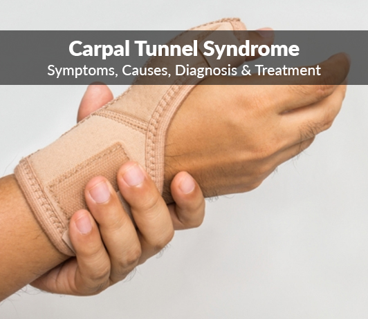 Median nerve compression (Carpal Tunnel Syndrome): Symptoms, Causes, Diagnosis & Treatment