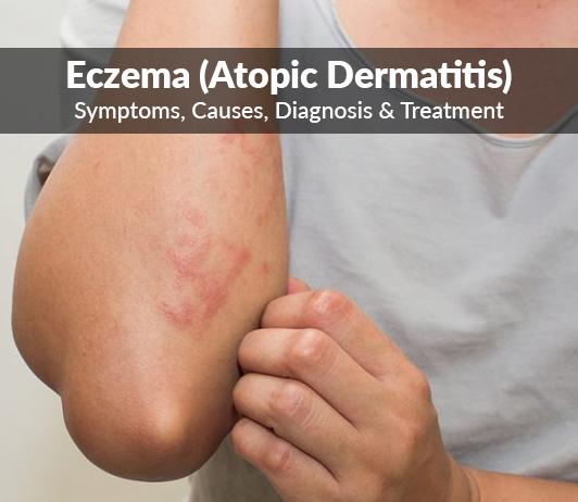 Atopic dermatitis (Eczema): Symptoms, Causes, Diagnosis & Treatment