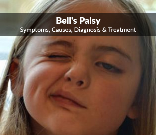 Idiopathic Facial Paralysis Bell S Palsy Symptoms Causes Diagnosis Treatment