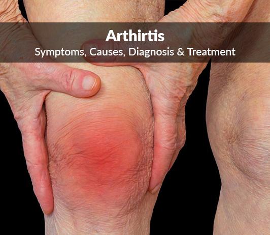 Joint Inflammation (Arthritis): Symptoms, Causes, Diagnosis & Treatment