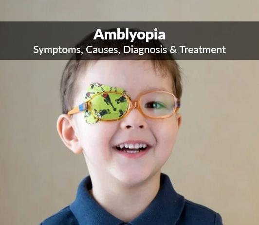 Lazy Eye (Amblyopia): Symptoms, Causes, Diagnosis & Treatment