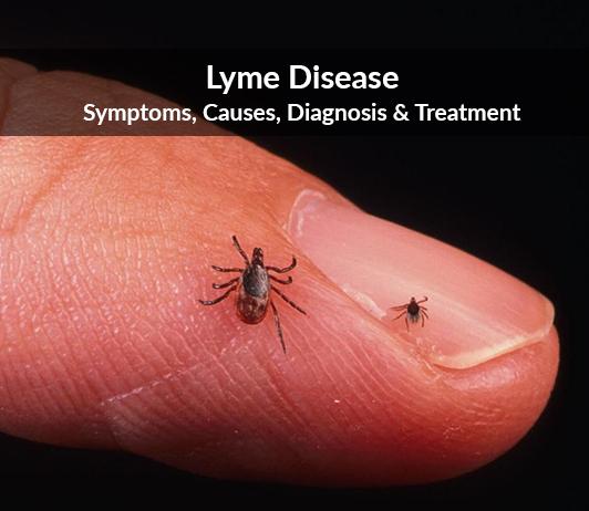 Lyme disease (Lyme neuroborreliosis): Symptoms, Causes, Diagnosis & Treatment