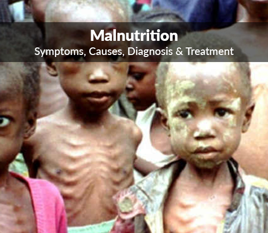 Malnutrition: Symptoms, Causes, Diagnosis & Treatment