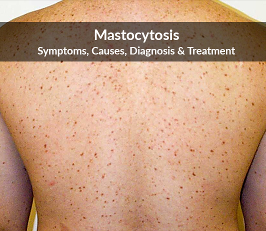Mastocytosis (Urticaria Pigmentosa): Symptoms, Causes, Diagnosis & Treatment