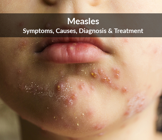 Measles (Morbilli): Symptoms, Causes, Diagnosis & Treatment