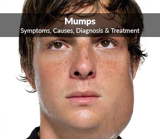 Parotitis (Mumps): Symptoms, Causes, Diagnosis & Treatment