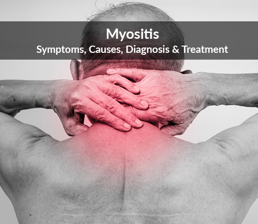 Myositis (Inflammatory myopathy): Symptoms, Causes, Diagnosis & Treatment