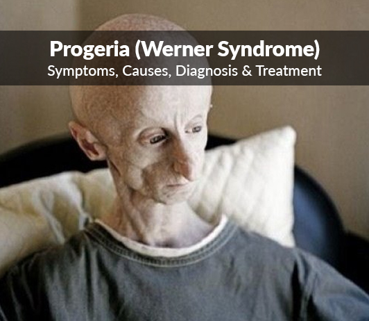 Progeria (Werner Syndrome): Symptoms, Causes, Diagnosis & Treatment