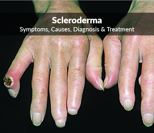 Scleroderma (Dermatosclerosis) : Symptoms, Causes, Diagnosis & Treatment
