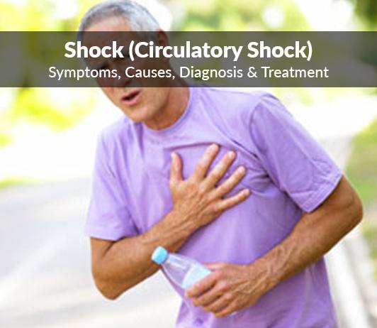 Shock (Circulatory shock) : Symptoms, Causes, Diagnosis & Treatment