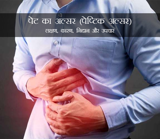 stomach-ulcer-peptic-ulcer-in-hindi
