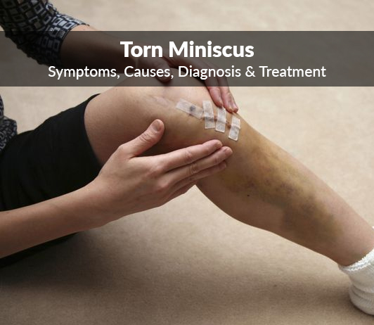 Torn miniscus (Tear of miniscus) : Symptoms, Causes, Diagnosis & Treatment