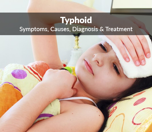 Typhoid (Enteric Fever): Symptoms, Causes, Diagnosis & Treatment