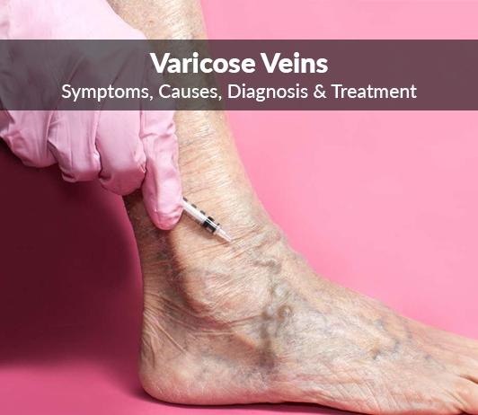 Varicose veins (Varicises): Symptoms, Causes, Diagnosis & Treatment