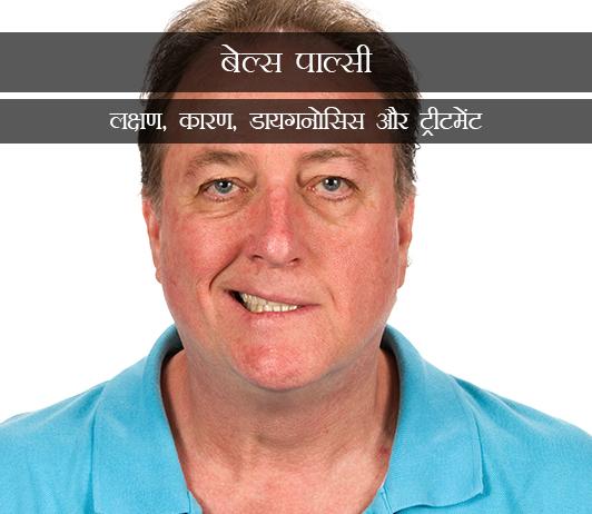 Bell's Palsy in Hindi इडियोपैथिक फेसियल पैरालिसिस(बेल्स पाल्सी): लक्षण, कारण, डायगनोसिस और ट्रीटमेंट
