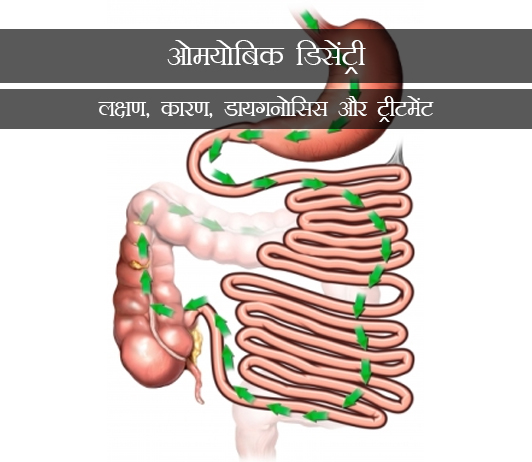 Amoebiasis in Hindi ओमयोबिक डिसेंट्री (अमीबायसिस): लक्षण, कारण, डायगनोसिस और ट्रीटमेंट