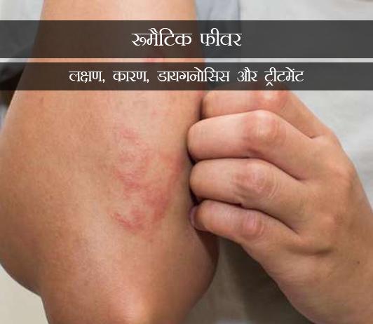 Rheumatic Fever (Inflammatory Rheumatism) in Hindi रूमैटिक फीवर (इनफ्लैमेंटरी): लक्षण, कारण, डायगनोसिस और ट्रीटमेंट
