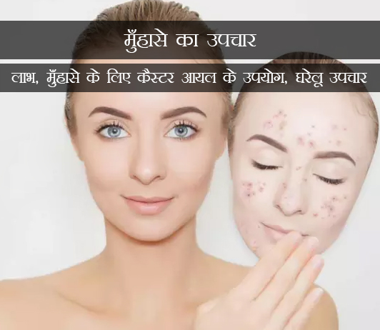 Benefits, Uses Of Castor Oil For Acne in Hindi मुँहासे का उपचार: लाभ, मुँहासे के लिए कैस्टर आयल के उपयोग, घरेलू उपचार