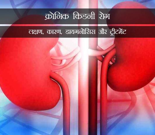 Chronic Kidney Disease in Hindi क्रोनिक किडनी रोग (क्रोनिक रीनल फेल्योर): लक्षण, कारण, डायगनोसिस और ट्रीटमेंट