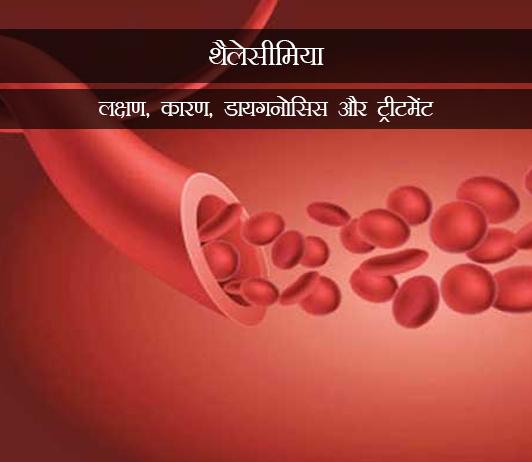 Thalassemia in Hindi थैलेसीमिया (मेडिटीरेरनियन एनीमिया): लक्षण, कारण, डायगनोसिस और ट्रीटमेंट