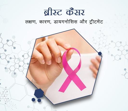 Breast cancer (Mammary gland cancer) in Hindi ब्रीस्ट कैंसर (मैमरी ग्रैंड कैंसर): लक्षण, कारण, डायगनोसिस और ट्रीटमेंट