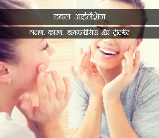 Distichiasis in Hindi - डबल आईलैशेज (डिस्टिचियासिस): लक्षण, कारण, डायगनोसिस और ट्रीटमेंट