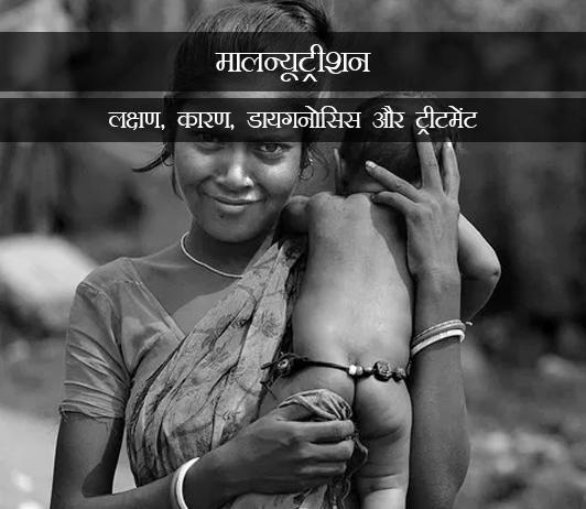 Malnutrition in Hindi मालन्यूट्रीशन: लक्षण, कारण, डायगनोसिस और ट्रीटमेंट