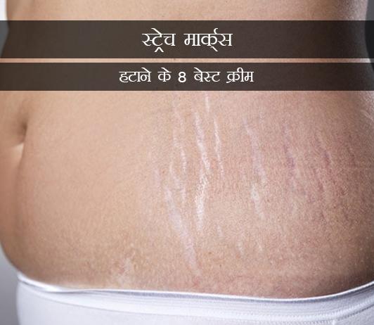 8 Best Creams to Remove Stretch Marks in Hindi स्ट्रेच मार्क्स हटाने के 8 बेस्ट क्रीम