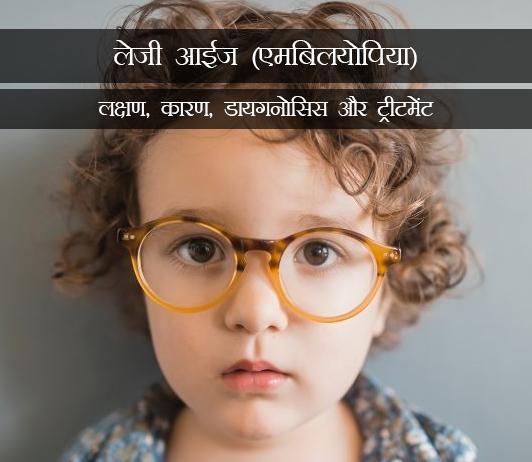 Lazy Eye (Amblyopia)in Hindi लेजी आईज (एमबिलयोपिया): लक्षण, कारण, डायगनोसिस और ट्रीटमेंट