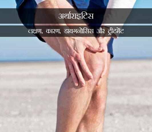 Joint Inflammation (Arthritis) in Hindi ज्वाइंट इफ्लैमेशन (अर्थाराइटिस): लक्षण, कारण, डायगनोसिस और ट्रीटमेंट