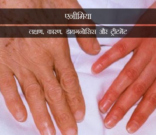 Anaemia in Hindi ब्लड लॉस (एनीमिया): लक्षण, कारण, डायगनोसिस और ट्रीटमेंट