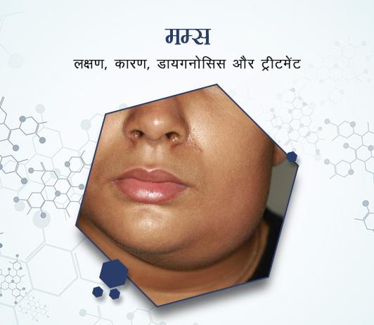Parotitis (Mumps) in Hindi पैरोटिटिस (मम्स): लक्षण, कारण, डायगनोसिस और ट्रीटमेंट