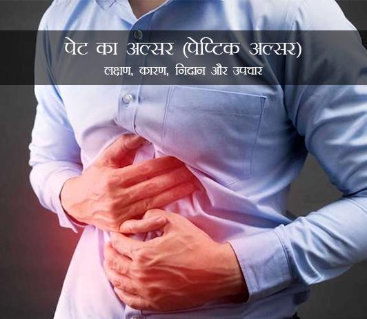 Stomach ulcer (Peptic ulcer) in Hindi पेट का अल्सर (पेप्टिक अल्सर): लक्षण, कारण, निदान और उपचार