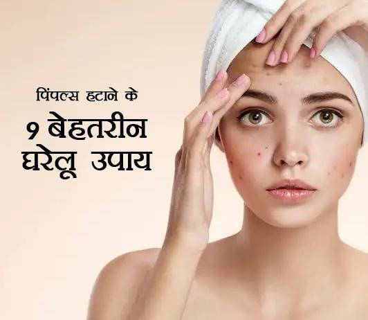 9 Best Home Remedies To Remove Pimples in Hindi - पिंपल्स हटाने के 9 बेहतरीन घरेलू उपाय