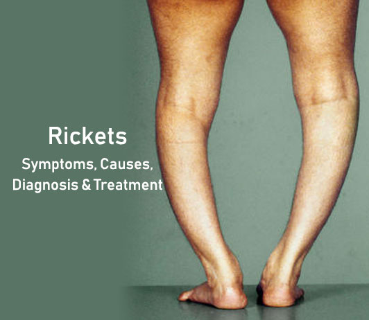Rickets: Symptoms, Causes, Diagnosis & Treatment