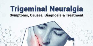 Trigeminal Neuralgia: Symptoms, Causes, Diagnosis & Treatment