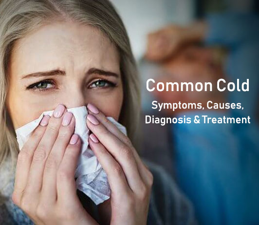 Common Cold: Symptoms, Causes, Diagnosis & Treatment