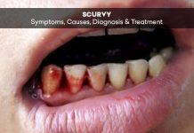 Scurvy: Symptoms, Causes, Diagnosis & Treatment